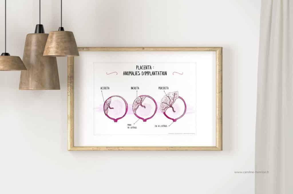 illustration aquarelle des anomalies d'implantation du placenta